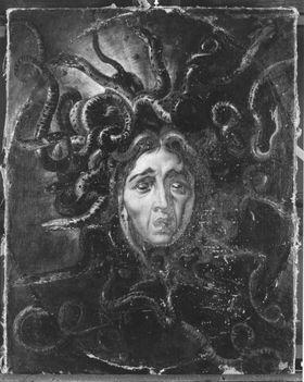 Medusenhaupt