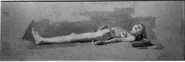 Studie einer weiblichen Leiche